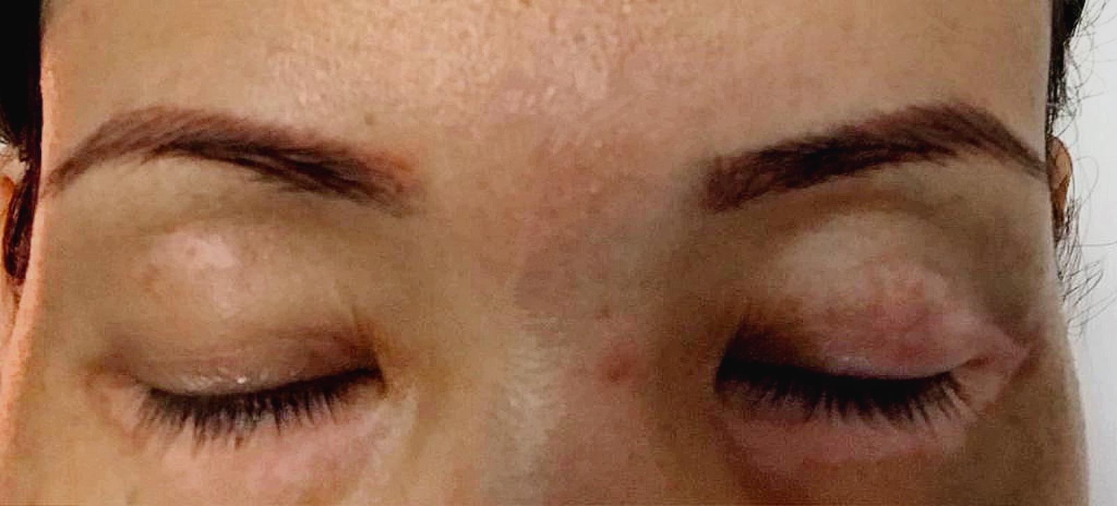 vitiligo before